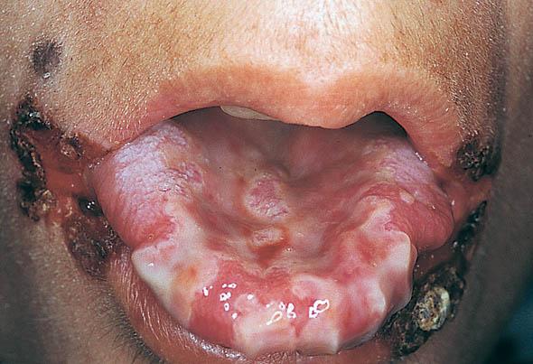 صور اعراض مرض الايدز