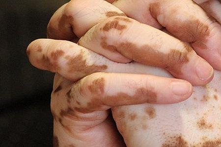 صورة علاج بهاق الرقبة اللي مكنتش لاقياه , علاج البهاق باارقبة