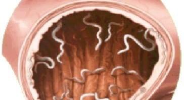 صور ديدان البطن انواعها واسبابها