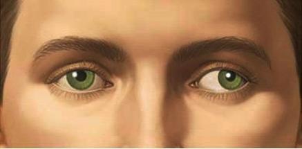 صور سبب غباش العين