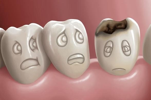 صورة ماهي اضرار تسوس الاسنان