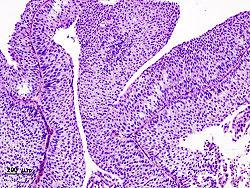 السرطان المثاتة مرض معدي