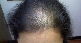 علاج تساقط شعر مقدمة الراس