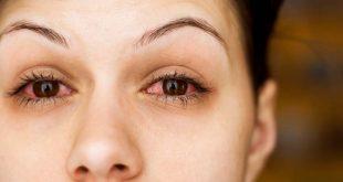 احمرار العين اثناء الحمل