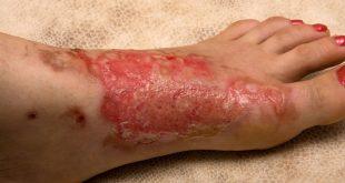 تبريد حروق الجلد