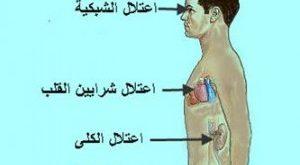 صورة مضاعفات مرض السكري الخطيرة