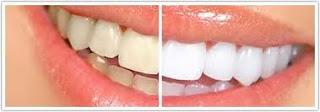 كيفية ازالة البقع الصفراء من الاسنان