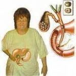 اعراض المرارةقي الجسم, تعرف علي اعراض المرارة