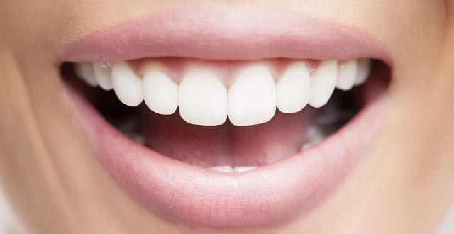 صور تبيض الاسنان طبيعيا