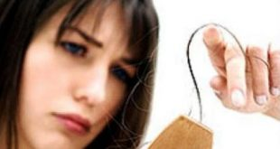 صور اضرار الكورتيزون على الشعر