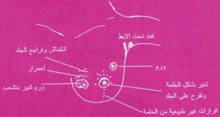 اعراض وعلامات سرطان الثدي
