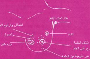 صور اعراض وعلامات سرطان الثدي