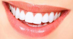 الاسنان الصفراء معالجتها