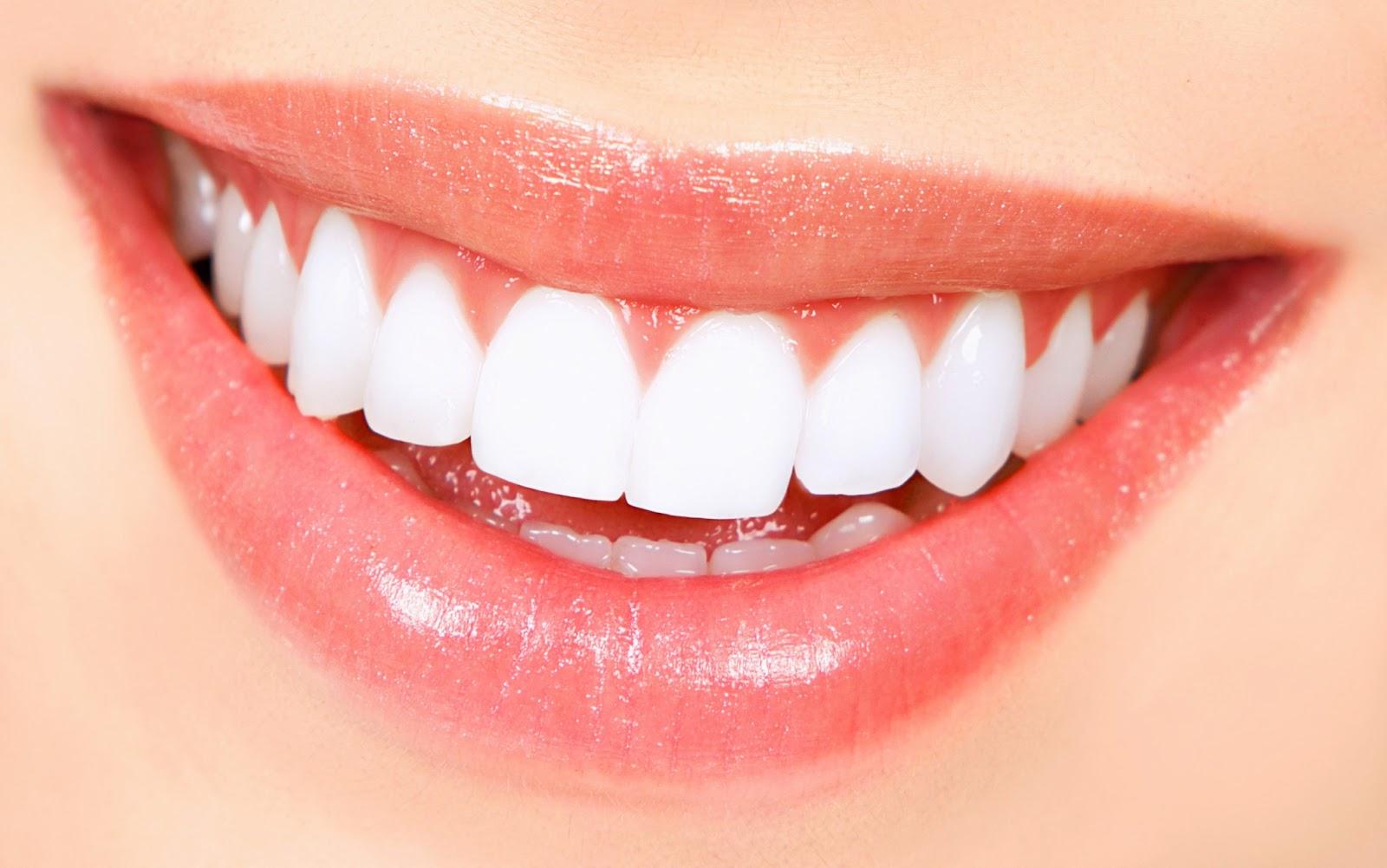 صور الاسنان الصفراء معالجتها