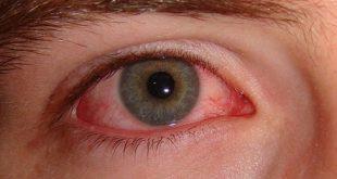 مرض العين الرمد