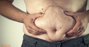اعراض مرض الكوليسترول