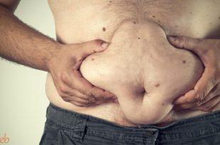 صوره اعراض مرض الكوليسترول