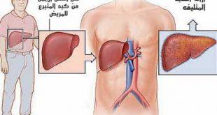 صورة مرض الكبد