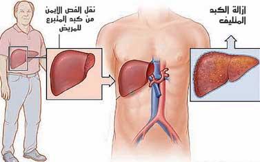 صور مرض الكبد