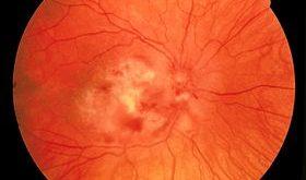 صور نوع الحقن التي تصيب العين باللم