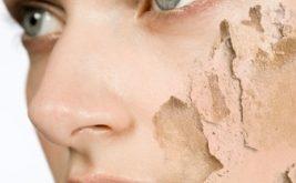 صور علاج جفاف البشرة