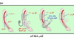 اعراض ارتفاع ضغط الدم , اعراض الضغط