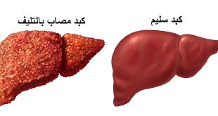 صورة ماهي مضاعفات مرض الكبد على اعضاء الجسم