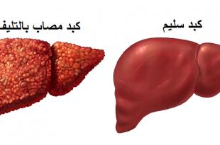 صور ماهي مضاعفات مرض الكبد على اعضاء الجسم