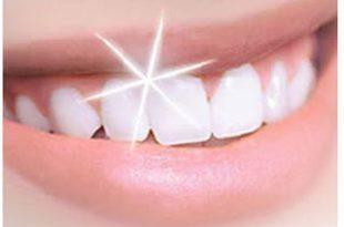صور تبييض الاسنان طبيعيا