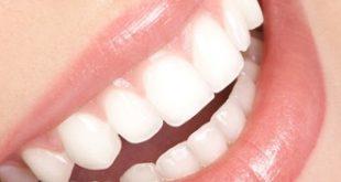 الطريقة الافضل تبيض الاسنان