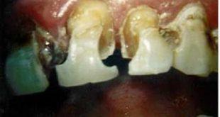 صور اضرار البيبسي على الاسنان