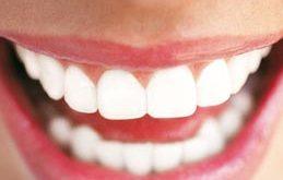 صوره لتبييض الاسنان