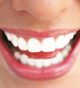 صور لتبييض الاسنان
