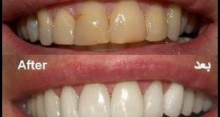 طريقة تنظيف الاسنان وتبيضها