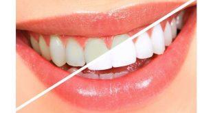 صورة كيفية تبيض الاسنان بطرق طبيعية