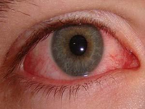 سبب غباشة العيون