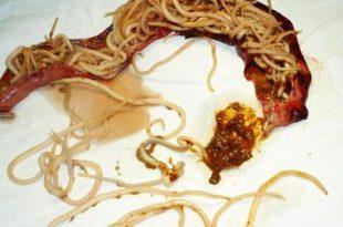 صور علاج الديدان ، الديدان عند الاطفال
