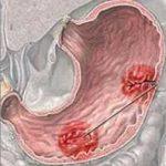 تليف المعده والكبد