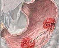 صور ضرار ثقب المعده وعلاجة