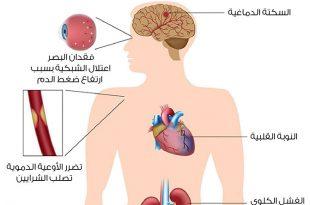 صور اعراض وعلامات وعلاج ضغط الدم