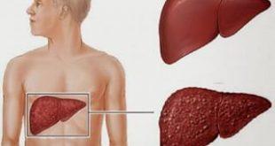 صور علاج الكيس المائي في الكبد بالاعشاب