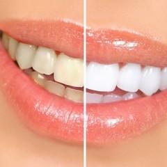 صور طرق تبيض الاسنان , لكل من يهتم بسنانه