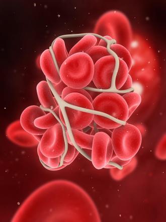 بالصور صرطان الدم 15889