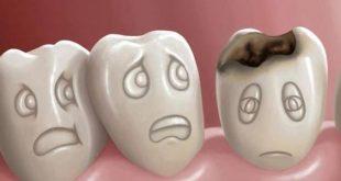 صورة التخلص من السوس في الاسنان