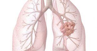 علامات سرطان الرئة