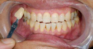 صورة تخلخل الاسنان الاماميه