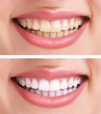 صور لتبيض الاسنان في المنزل