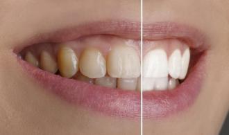 وصفات طبيعية لتبييض الاسنان
