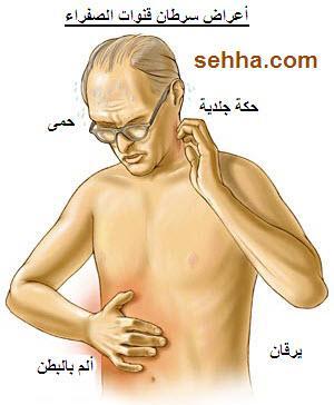 عراض سرطان قنوات الصفراء