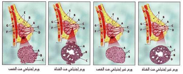 سرطان الثدي بالصور و التشخيص بالصور و العلاج و الوقايه؟؟